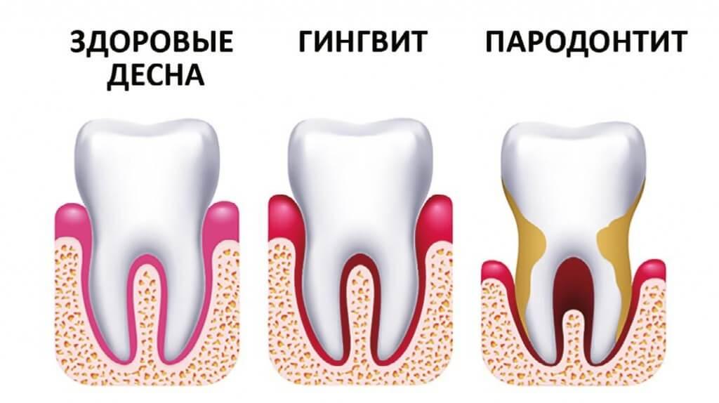 Пародонтоз — все, что нужно знать о причинах, симптомах и лечении, чтобы сохранить зубы